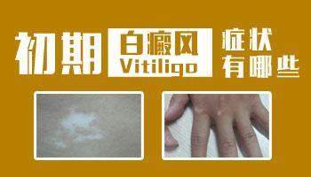 婴幼儿白癜风的早期症状有哪些 白斑图片