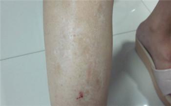 腿上的皮肤白了一块怎么回事
