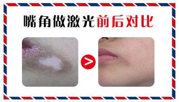 嘴角下面有一块浅色白斑是什么