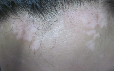 白斑长在额头上有一个月了是什么病