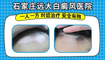眉毛上有白斑是什么原因