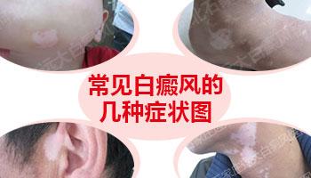 邯郸白癜风医院 邯郸白癜风的症状是什么