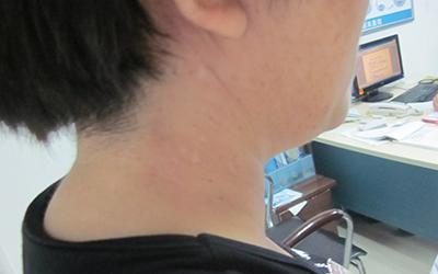 脖子白斑的症状图片