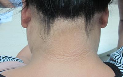 青少年脖子白斑早期症状图片