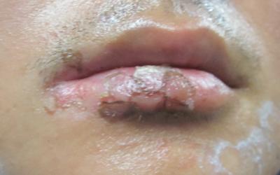 嘴巴周围白一圈的图片