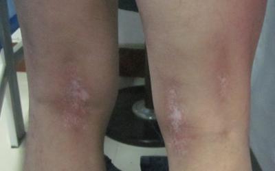 大腿根部内侧有白斑图