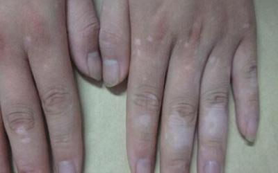 多个手指头上有白色的小块
