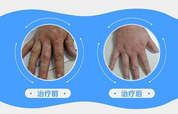 手指白斑初期的图片大全