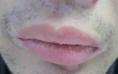 嘴唇上边一圈白色是什么