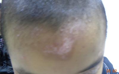 宝宝七岁头顶上有白斑是什么情况