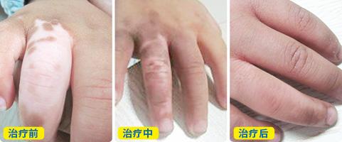 双手白癜风2个月了涂抹什么药膏好