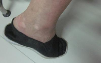 脚关节部位长了很多白点点是什么原因