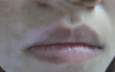 嘴角两边有两个对称的白斑