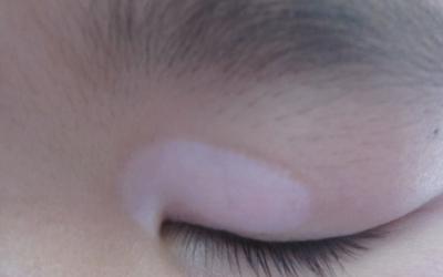 宝宝眼皮上有一块皮肤明显白了一块