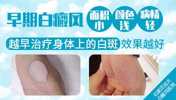 儿童白斑病早期症状图片