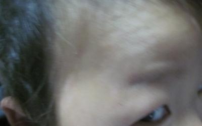 宝宝脸上有两个白点是白癜风吗