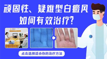 儿童白癜风白斑的症状有哪些表现