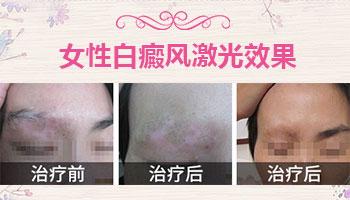女性脸上长白癜风跟肝肾功能有关吗