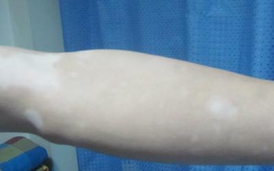 女儿手臂上有小白块是什么原因