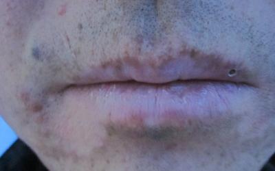 下嘴唇有一块白是怎么回事 嘴唇发白的原因