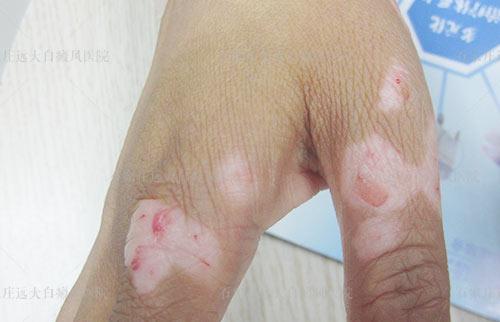 受伤患处皮肤发白是什么原因