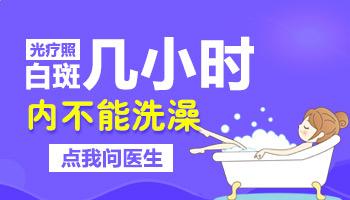 白癜风照完紫外线为什么不能碰水