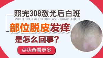 白癜风照射308nm准分子激光后脱皮怎么回事