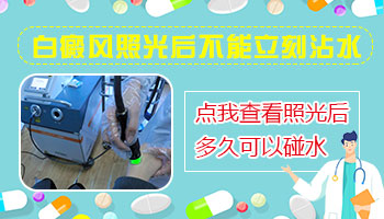 308准分子治疗白癜风多长时间能碰水
