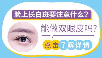 白癜风多年没扩散可以做双眼皮吗