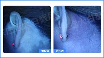 耳朵前边的白斑两个月了是什么