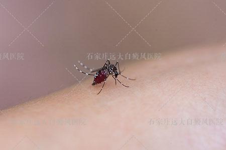 蚊子咬后留下的白斑怎么去掉