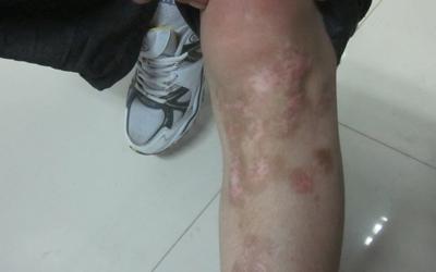 腿上皮肤受伤愈合后有一点点白的