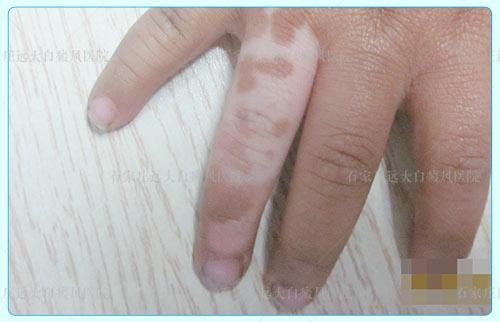 手指皮肤颜色突然变白是怎么回事
