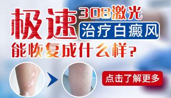 治疗白癜风的光疗仪多少钱