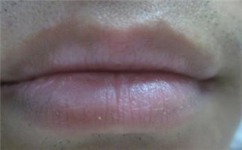 嘴唇中间有块白色的是什么