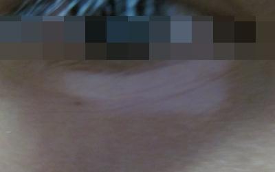 白癜风睫毛白了能变黑吗