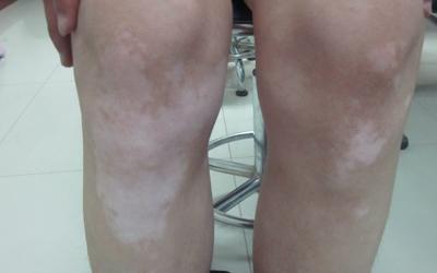 两条腿上出现绿豆大小的白点是怎么回事