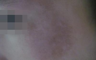 儿童白色糠疹与白癜风的图片区别