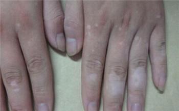 手指关节皮肤发白图片