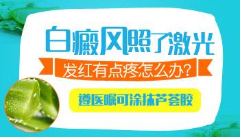 白癜风可以使用完美芦荟胶吗