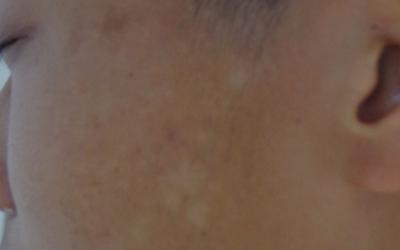 儿童缺维生素脸上长白块图片
