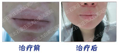 嘴唇粘膜白癜风几天做一次308光疗好