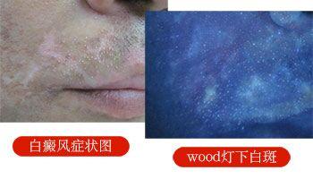伍德灯检查对皮肤有损伤吗