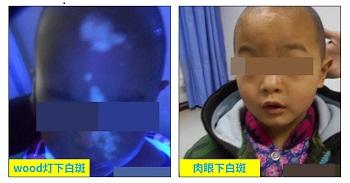 两岁多小孩脸上有一小块不太明显白斑