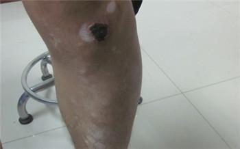 腿关节突然白一块了一个月了
