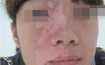 脸上肤色不均匀有一块一块的白色斑块