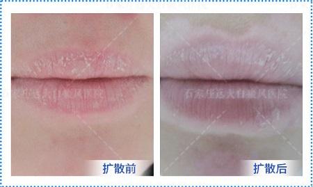 嘴唇上有一圈白色轮廓是怎么回事
