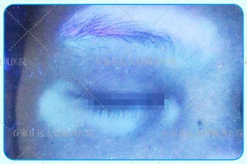 女士眼周围有白斑一个月了怎么回事