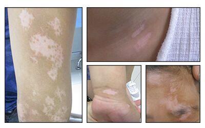 皮炎留下的白斑怎么消除 白斑是白癜风吗