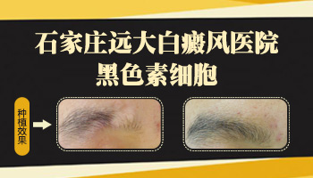 白癜风植皮手术一年后皮肤图